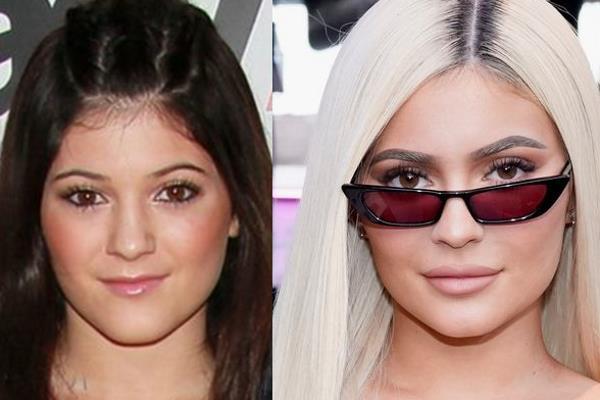20 zvijezda prije i poslije plastičnih operacija
